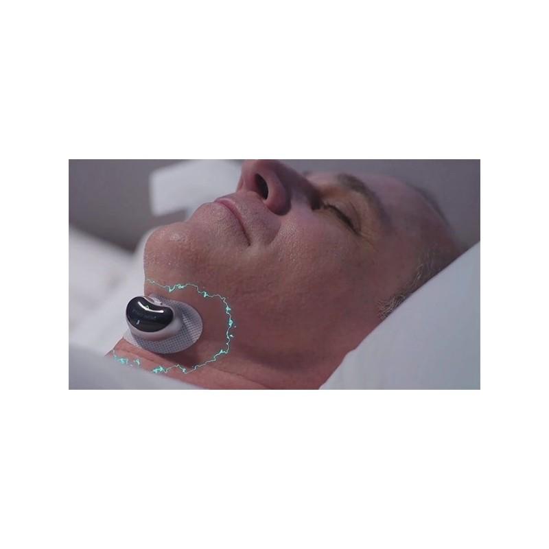 AntiSforait pentru nas - SnorePod